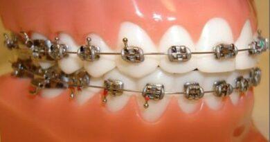 PHILIPPINEN MAGAZIN - NACHRICHTEN - Falscher Zahnarzt gestellt